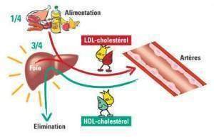 hypercholestérolémie