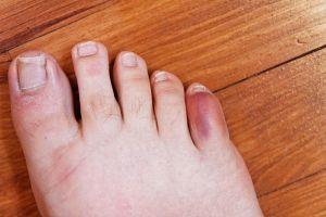 petit orteil pied droit hématome